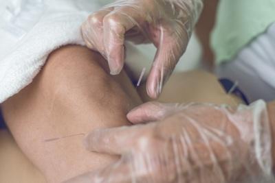 Akupunktur am Bein